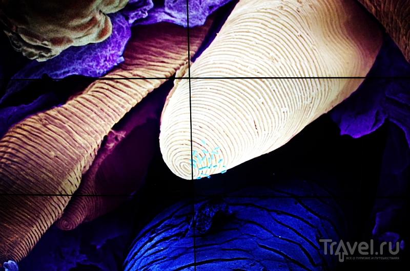 Микробы в Амстердаме / Фото из Нидерландов